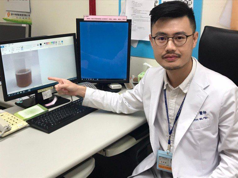 吳燕峻醫師指出,陳女因橫紋肌溶解,尿液變深茶色。記者卜敏正/翻攝