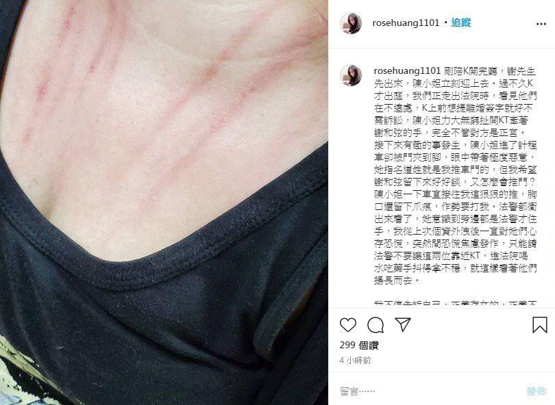 謝妻經紀人曝光自己脖子胸前抓痕的照片。圖/擷自IG