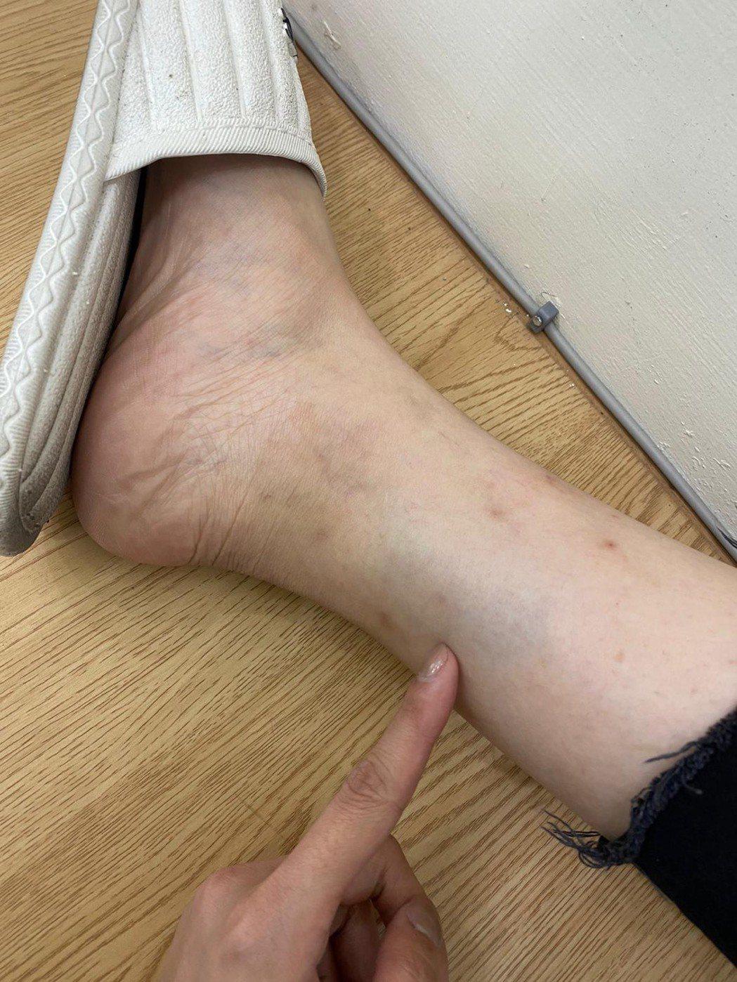 莉婭腳上的瘀青照,證明自己才是受害者。圖/莉婭提供