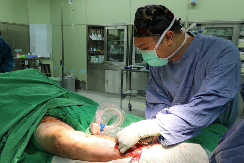 亞洲大學附屬醫院心臟血管外科主任劉殷佐指出,靜脈超級膠水閉合手術時間約1小時內,術後當天即可恢復正常生活,不需穿著醫療用彈性襪。圖/亞洲大學附屬醫院提供