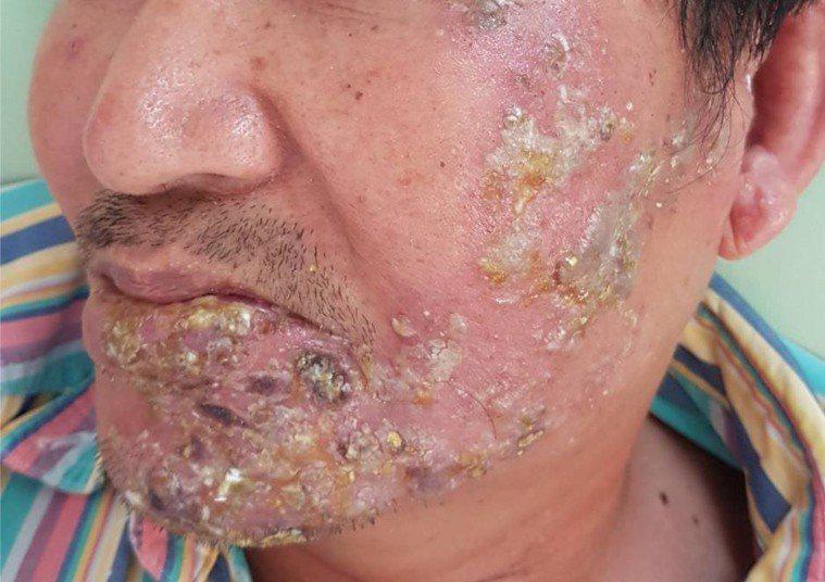 南投縣吳姓男子罹患帶狀泡疹未及時就醫,左臉出現一連串的水泡、潰瘍和結痂,相當嚇人...