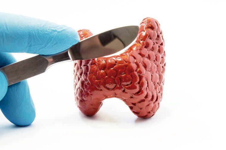 甲狀腺切除術依病情需要,進行部份或全部切除。圖/123RF