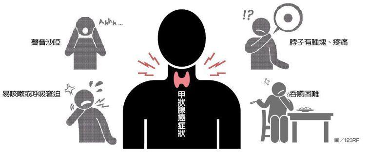 甲狀腺癌症狀 圖/123RF
