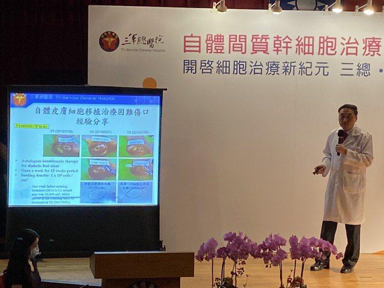 三總外科部部主任戴念梓表示,間質幹細胞治療具有分化、抗發炎的特性,可分化成為皮膚...