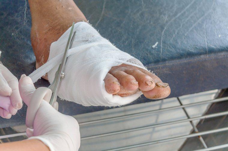 糖尿病足透過細胞治療,讓傷口癒合,免除截肢風險。圖/123RF