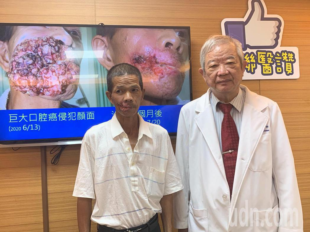 高市聯醫腫瘤外科教授沈茂昌(右)與口腔癌病患,分享動脈注射化學療法過程。記者徐如...