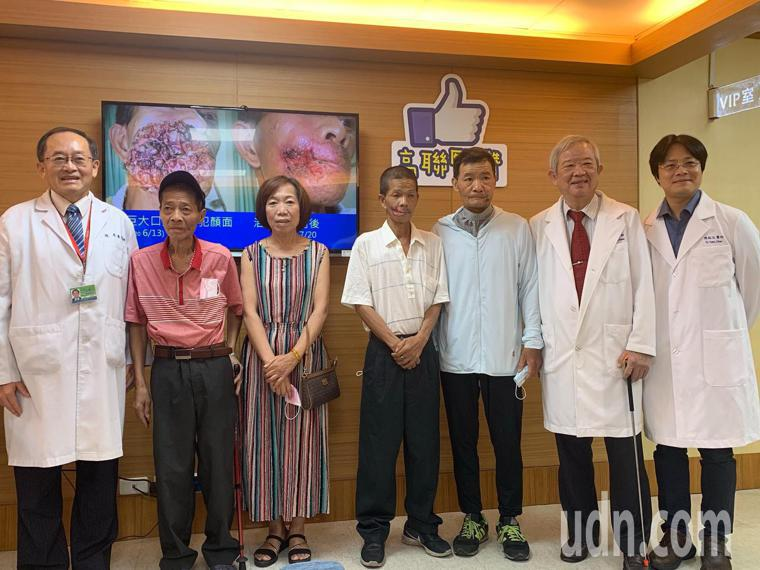 口腔癌病患在高市聯醫接受動脈注射化學療法,感謝醫療團隊幫助他們擺脫臉部巨大腫瘤黑...