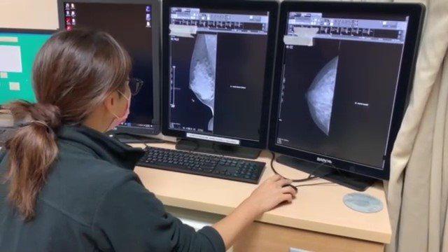 3D乳房斷層攝影會在單側乳房分別記錄25張影像,提高乳癌在緻密乳房的偵測率41%...