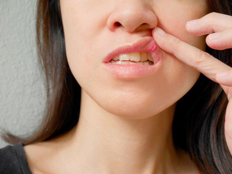嘴破治療,以類固醇消炎藥、非類固醇類藥品、組織凝結劑及保護性凝膠為主。圖╱123RF