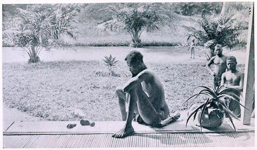 剛果黑人奴工的5歲女兒,被公安軍砍去一隻手掌與一隻腳掌,作為脅迫警告。這段非洲恐...
