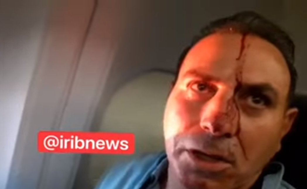 馬漢航空的客機突然劇烈轉向並改變飛行高度,機上的乘客有人被撞得頭破血流。 圖/《...