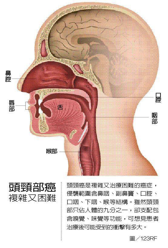 頭頸部癌 複雜又困難 圖/123RF