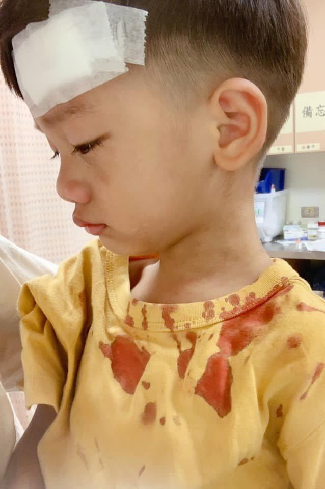 宥勝曝光兒子滿身是血照片。圖/摘自臉書