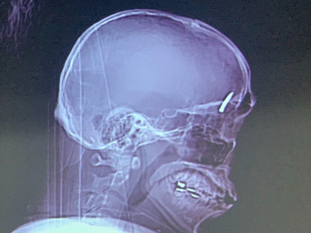 一名年輕裝潢工人被釘槍的釘子射入顱內。記者徐如宜/翻攝