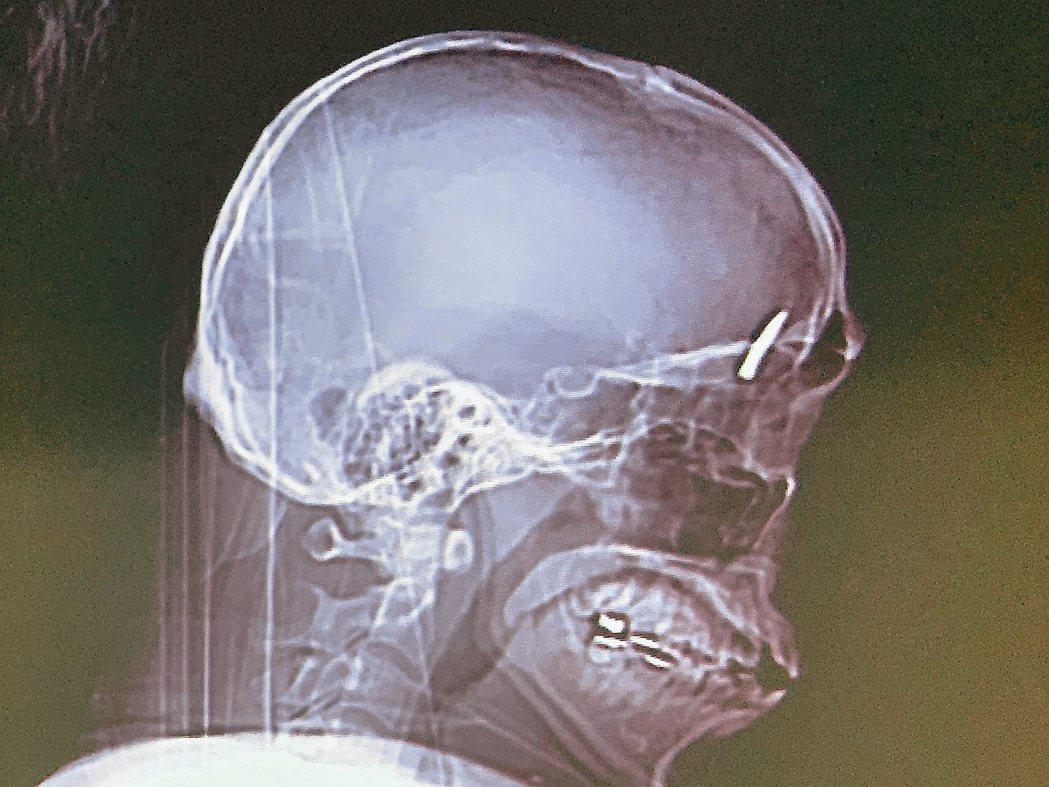 一名年輕裝潢工人被釘槍的釘子射入顱內。 記者徐如宜/翻攝