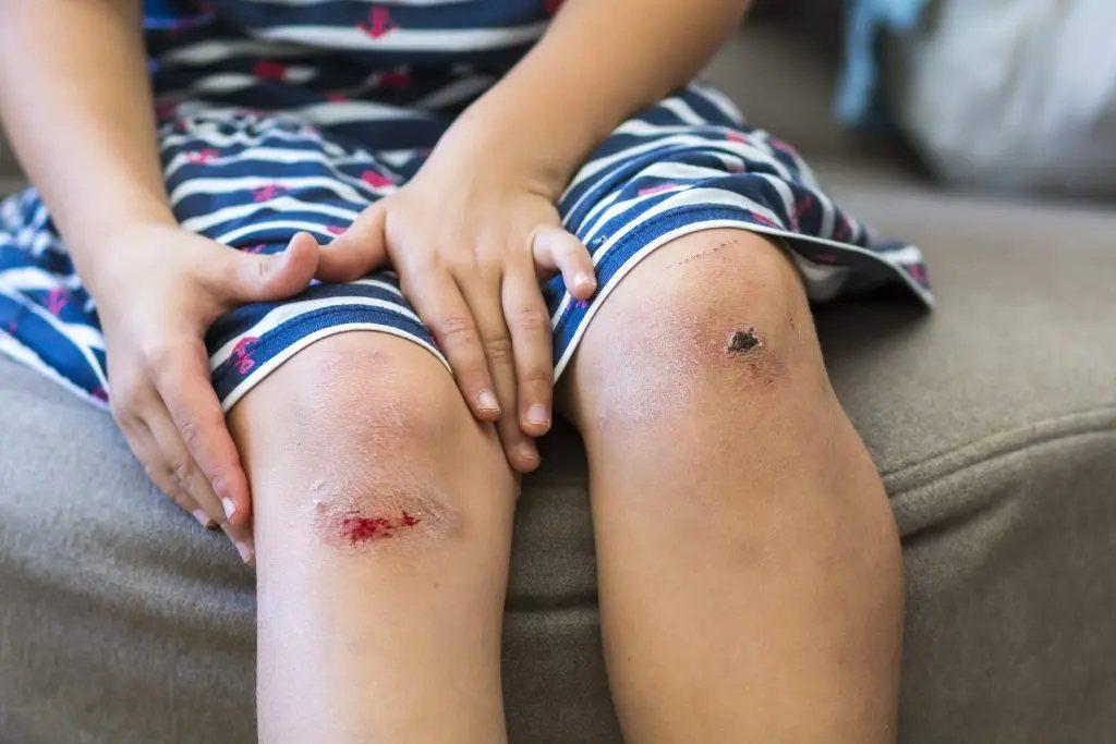 有些情況是需要撕掉傷口結痂。