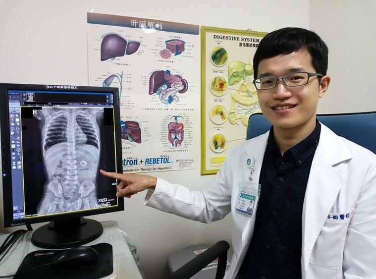 林裕鈞醫師提醒,孩童誤吞異物時,不要再以其他方式將異物取出,應盡快送醫處理,以免...