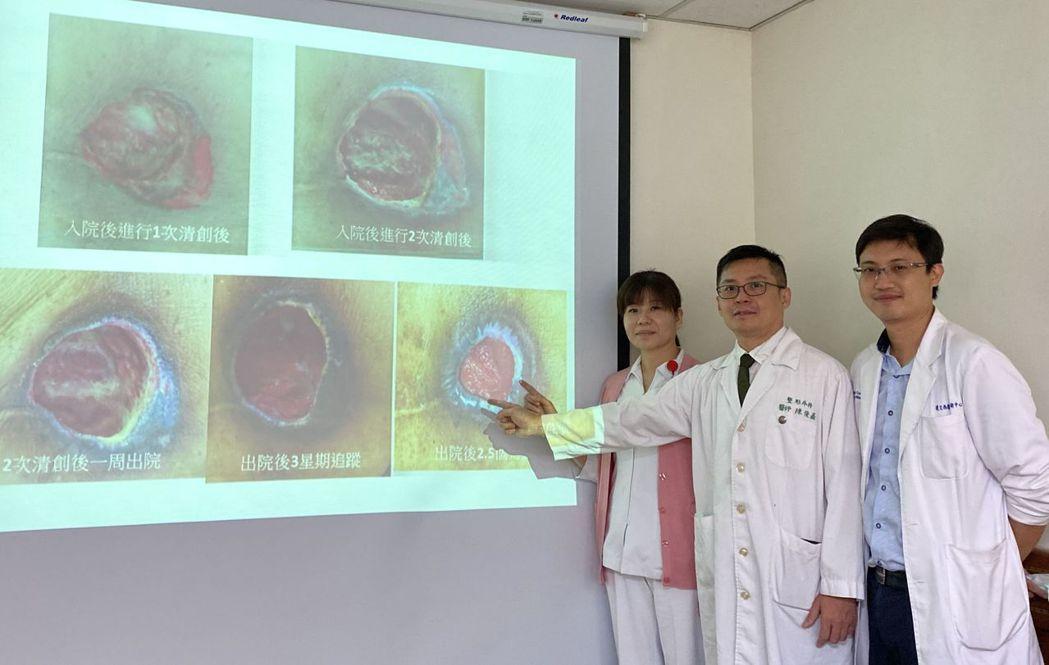 中山醫學大學附設醫院傷口中心醫療團隊悉心照料,傷口護理師賴瓊玲(左)追蹤,並提供...