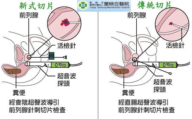 傳統切片法之檢針恐因從肛門直腸進入而接觸到細菌,新式切片法之檢針從會陰進入則避免...