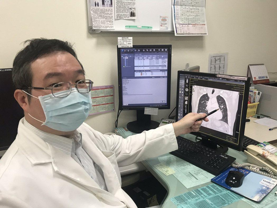 衛福部苗栗醫院胸腔外科主任連允昌指出,低劑量電腦斷層掃描可檢測出0.2毫米以上的...