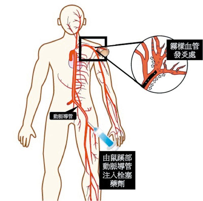 霧樣血管栓塞術將微細導管從鼠蹊部或手部的動脈置入,尋找疼痛部位的異常新生血管,再注射栓塞藥物,阻斷異常新生血管生長,進而減少發炎。圖/湯其暾醫師提供