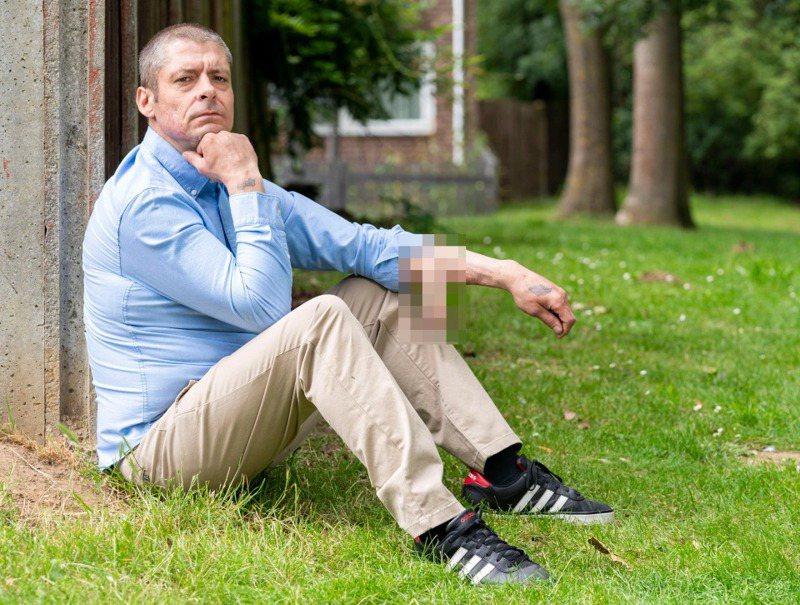 英國45歲機械工麥克唐納長期會陰感染發展成敗血症,導致手指、腳趾和生殖器發黑,生殖器更於2014年掉落,儘管他接受生殖器重建,但最終手術因為各種理由不停往後延遲,導致他成為世界第一位前臂有著生殖器的男人。畫面翻攝:thesun.co.uk