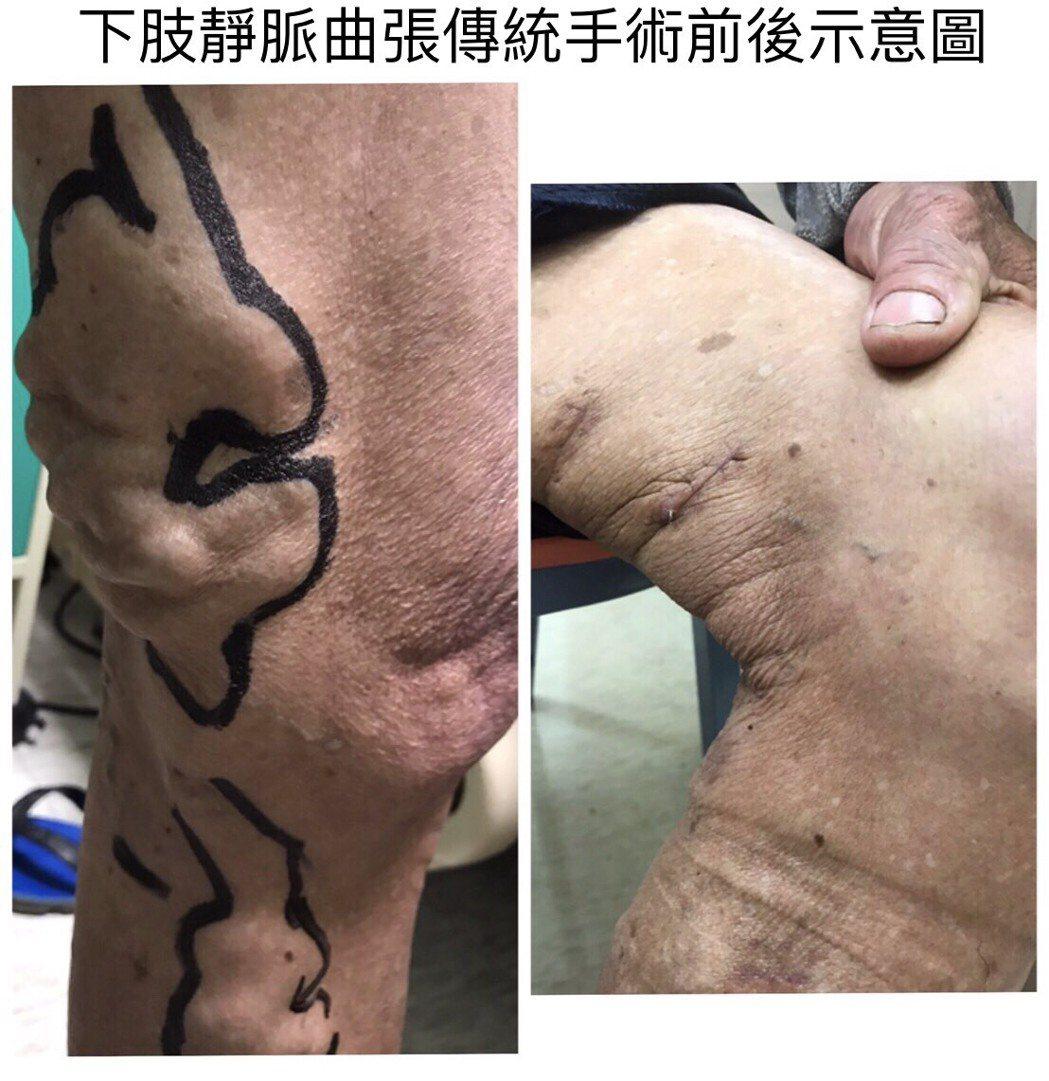 靜脈曲張治療方式由醫師依病人病情及需要評估,圖為傳統手術前後對照圖。圖/衛生福利...