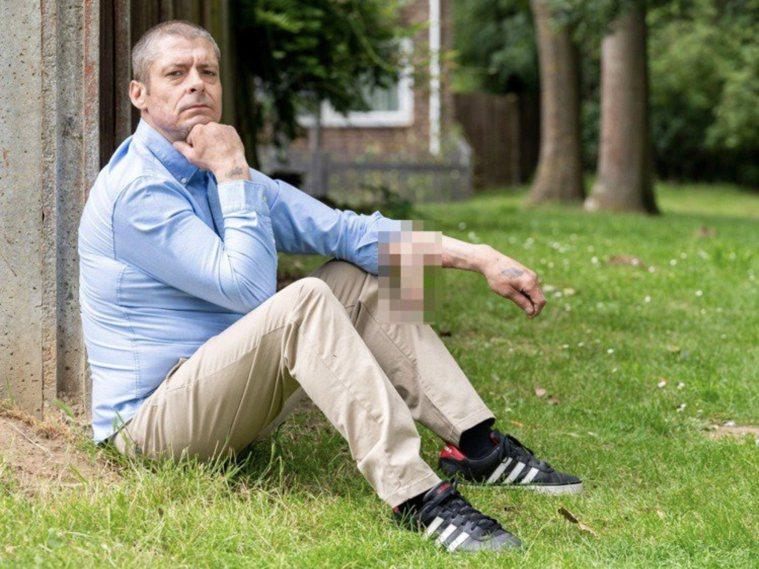 英國45歲機械工麥克唐納長期會陰感染發展成敗血症,導致手指、腳趾和生殖器發黑,生...