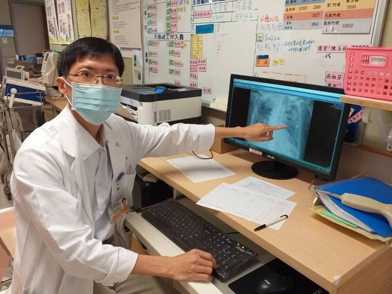 嘉義長庚醫院胸腔內科醫師林玠模指出,吸入性肺炎好發族群,包括年紀大病人、長期臥床、慢性病、失智、中風等。圖/嘉義長庚提供