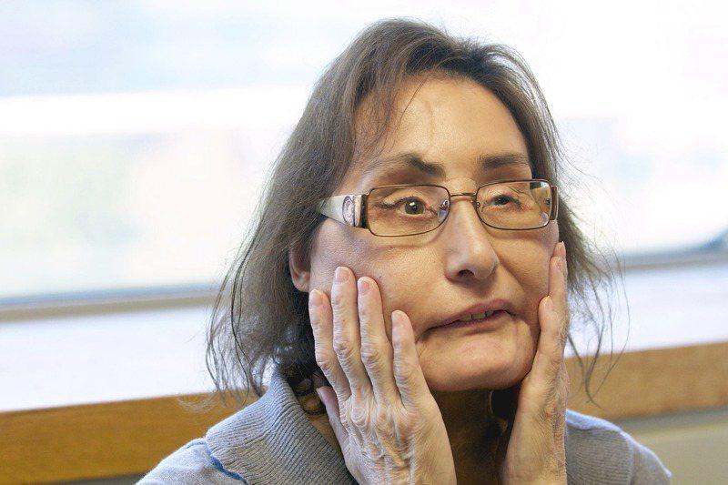 美國首位接受臉部局部移植患者的康妮・卡普7月29日病逝。圖為2010年她手術後兩年的檔案照。美聯社