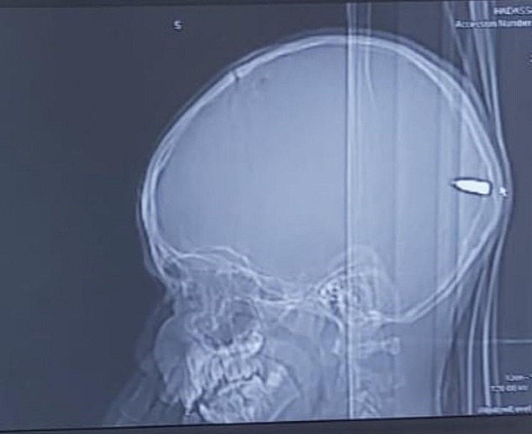 以色列一名9歲巴勒斯坦男孩日前因昏昏欲睡就醫,檢查後發現他的大腦卡著一顆子彈,值...
