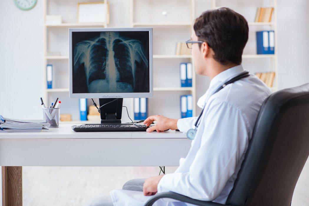 肺癌以免疫治療搭配化療的雞尾酒式療法,顯著優於兩種治療方式的單獨使用。圖╱123...