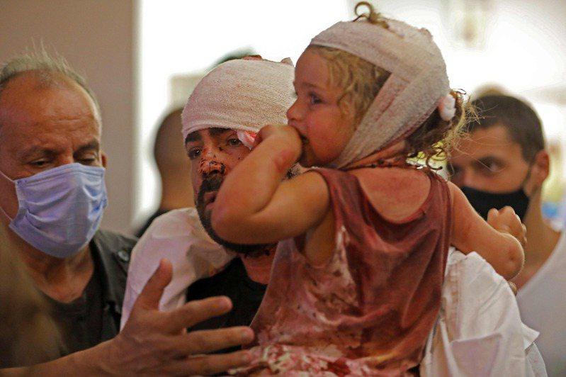 黎巴嫩首都貝魯特4日下午發生大爆炸,醫院擠滿傷者不堪負荷。法新社