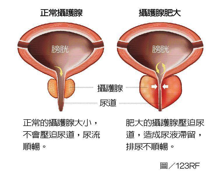 攝護腺肥大示意圖 圖/123RF 製表/元氣周報
