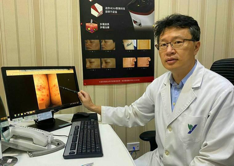 阮綜合皮膚科醫師劉昭宏建議,針對臀部股溝、下緣的痘痘、暗沉、粗糙,最根本除了穿寬...