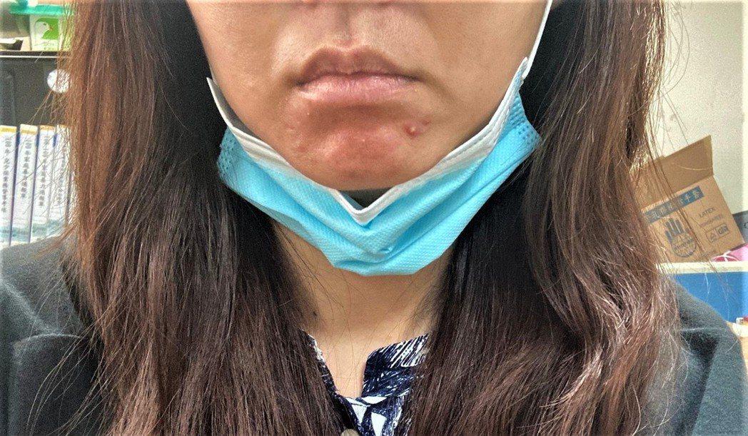南投縣32歲陳姓女子因長時間戴口罩,導致嘴邊和下巴狂冒痘,還長出一堆粉刺。圖/南...