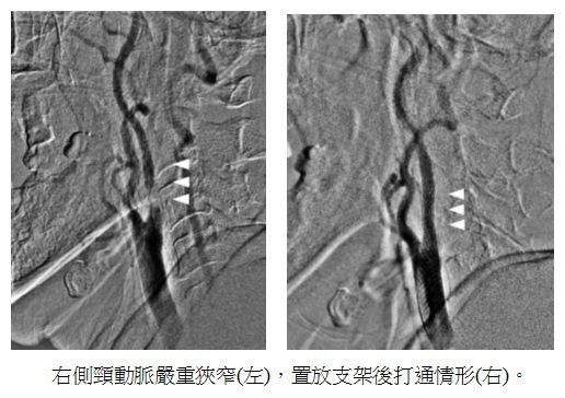 患者右側頸動脈狹窄(左),右為置放支架打通後情形。圖/澄清醫院中港院區提供