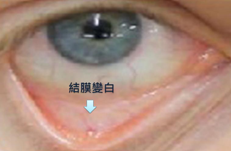鉛中毒的患者結膜處會變白。圖/取自網路