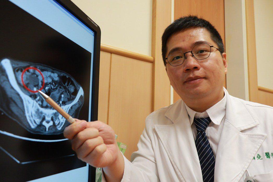 台中慈濟醫院一般外科醫師高國堯說明詹姓婦人闌尾腫瘤。記者余采瀅/攝影