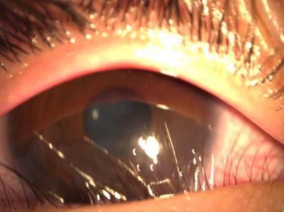 胖男童因「下眼瞼贅皮」嚴重,把睫毛往眼球方向推,造成眼角膜擦損及混濁,需要手術治...