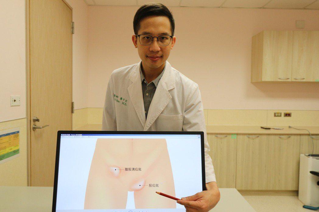 亞洲大學附屬醫院泌尿科醫師蕭子玄說,股疝氣常見於女性,尤其是生過好幾胎的中老年婦...