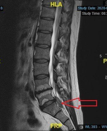 核磁共振的縱切面: 可以看到明顯的椎間盤突出(箭頭處)往下游離