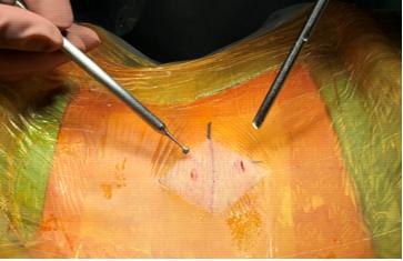 雙通道脊椎內視鏡手術: 外觀上兩個約1公分傷口,即可以達到徹底椎間盤突出切除