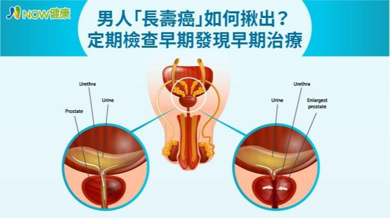 ▲呂謹亨醫師表示,傳統攝護腺癌病理診斷,診斷率約僅3成,尤其是腫瘤如果在較難切片...