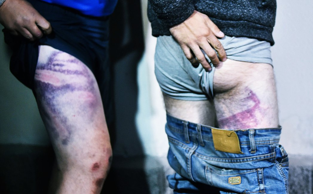 一名被釋放的白俄羅斯示威被捕者,向媒體展示他大片受傷瘀青的身體。 圖/法新社