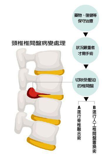 頸椎椎間盤病變處理 圖/123RF 製表/元氣周報