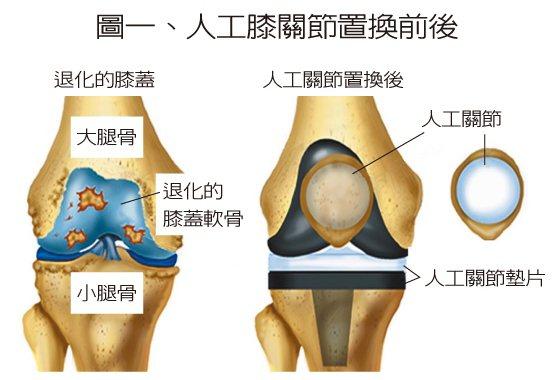 圖一、人工膝關節置換前後 圖/陳志鎧提供