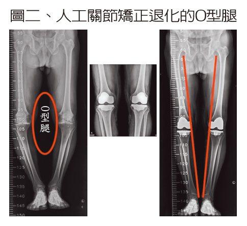 圖二、人工關節矯正退化的O型腿 患者O型腿嚴重退化變形(左),經過雙膝人工關節置...