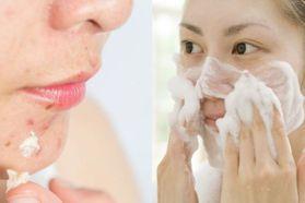 口罩痘狂長怎麼辦?居家深層清潔做到8個重點步驟,讓粉刺、痘痘不再滿臉狂長
