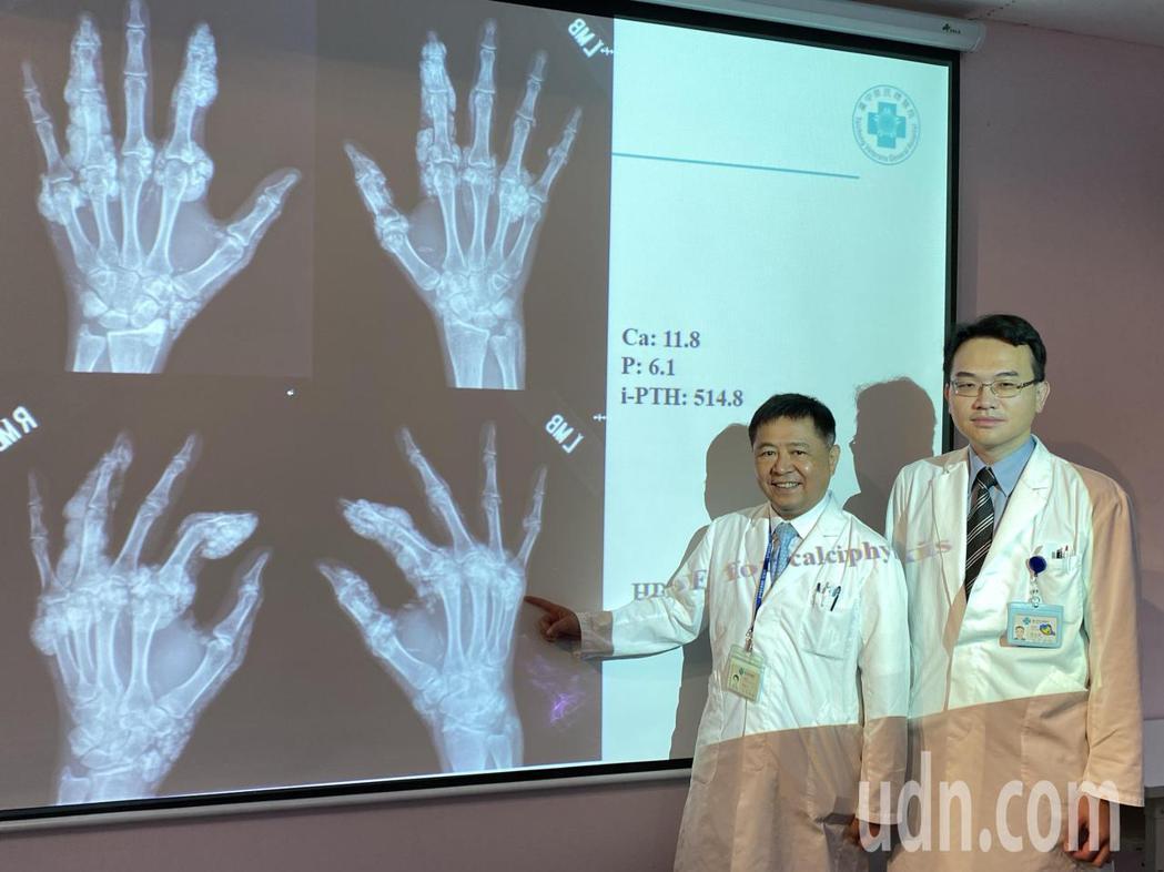 醫師陳呈旭(左)說明,吳姓女病患洗腎期間難以飲食、藥物控制,手指等處關節、血管鈣...